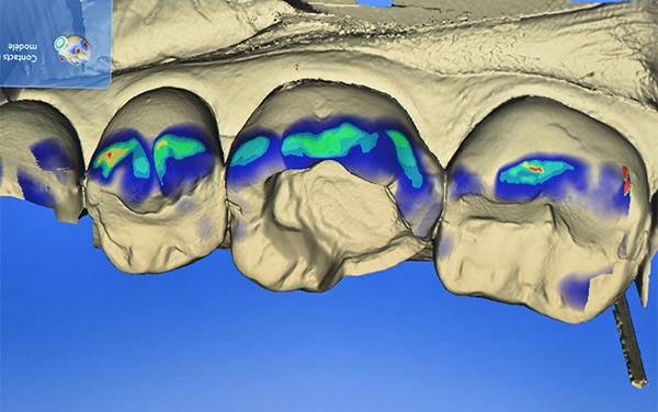 Paris Descartes se dote d'une structure de CFAO dentaire unique en France